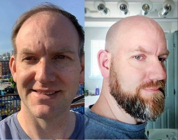 Bald before and after Jamie