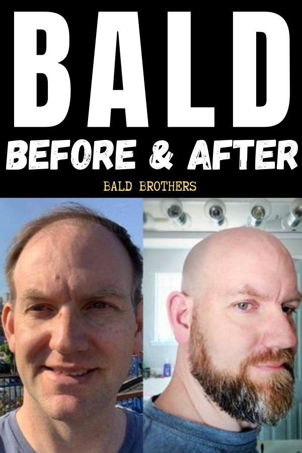 Bald before and after Jamie (1)