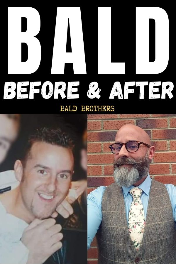 Balding Before And After 2
