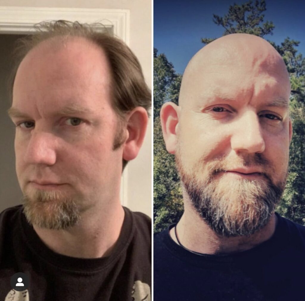 Bald before and after Jamie 1