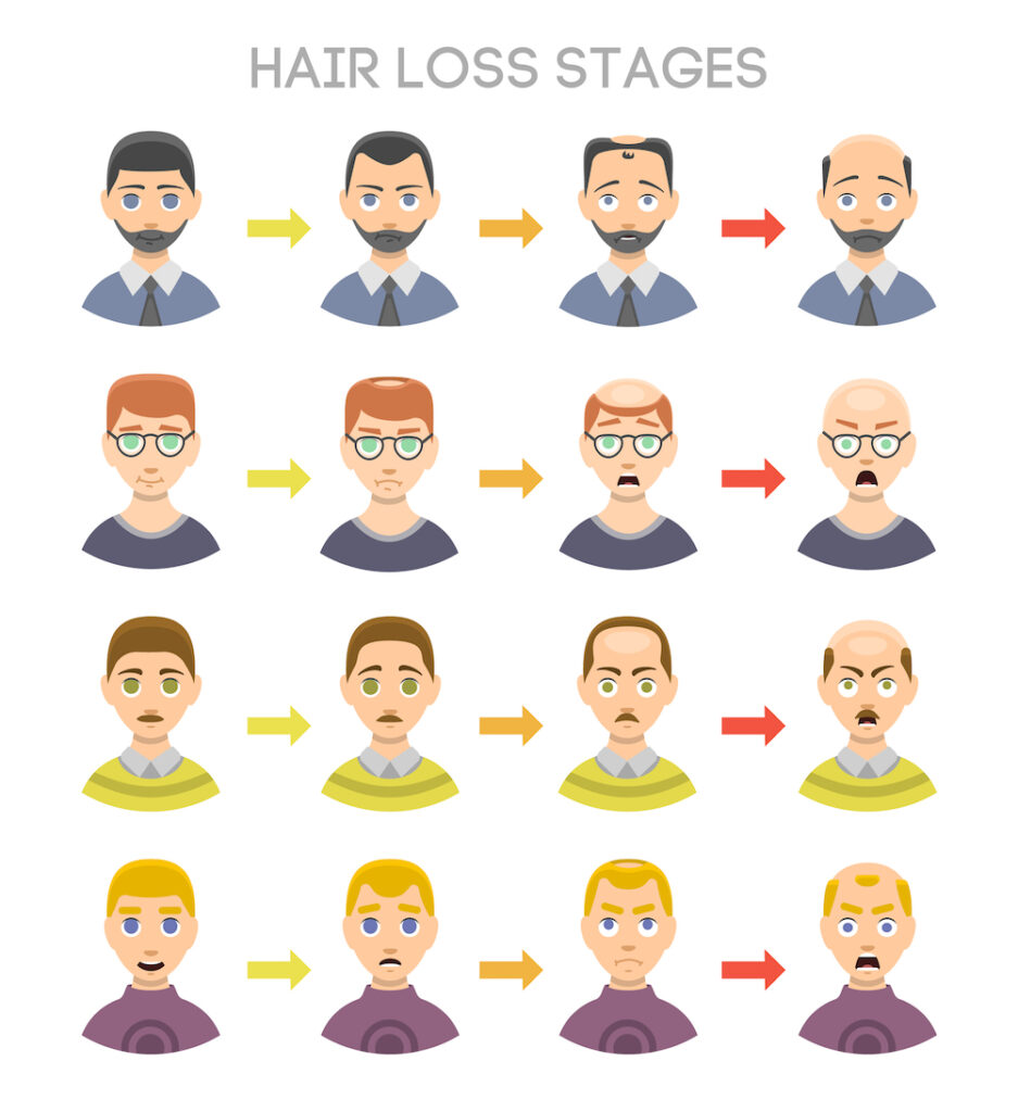 Receding Hairline Stages