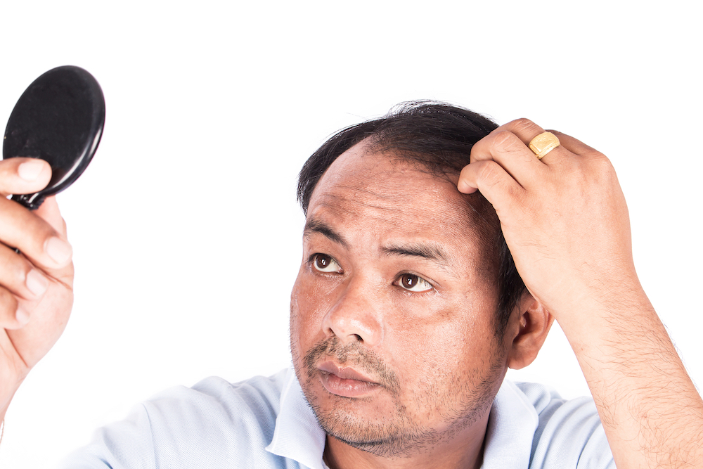 Dealing with hair loss 2