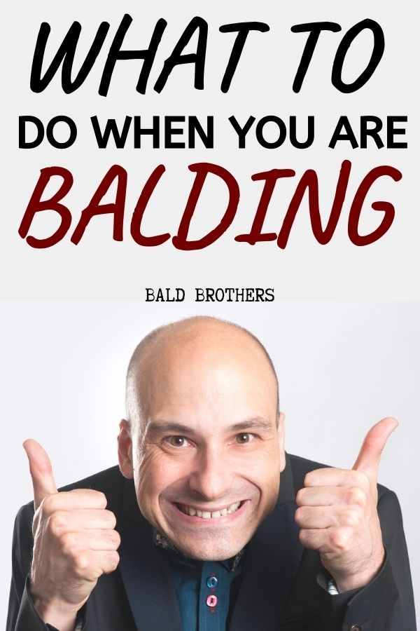 Dealing your hair loss