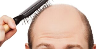 How To Overcome Hair Loss 2