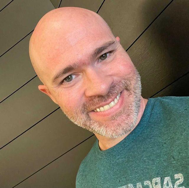 overcome balding