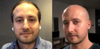 Bald World Official